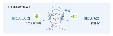クロス補聴器のしくみ
