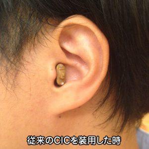 補聴器 CIC 装用例