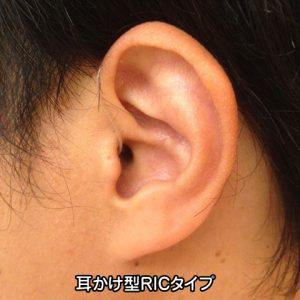 クロス補聴器 耳掛け RIC