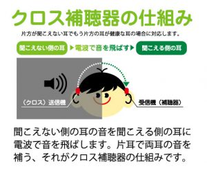 片耳難聴 クロス補聴器 仕組み