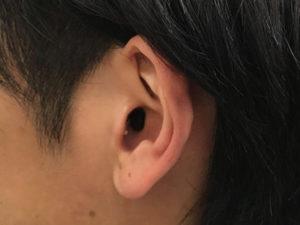 耳あな型 iic