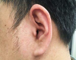 耳かけ型補聴器 ric